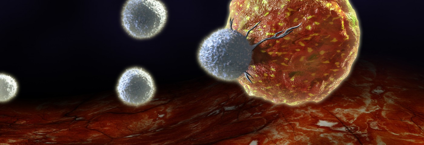 Oncologist Reports 'Dramatic' Anti-Cancer Effect Seen in New T-cell Therapy
