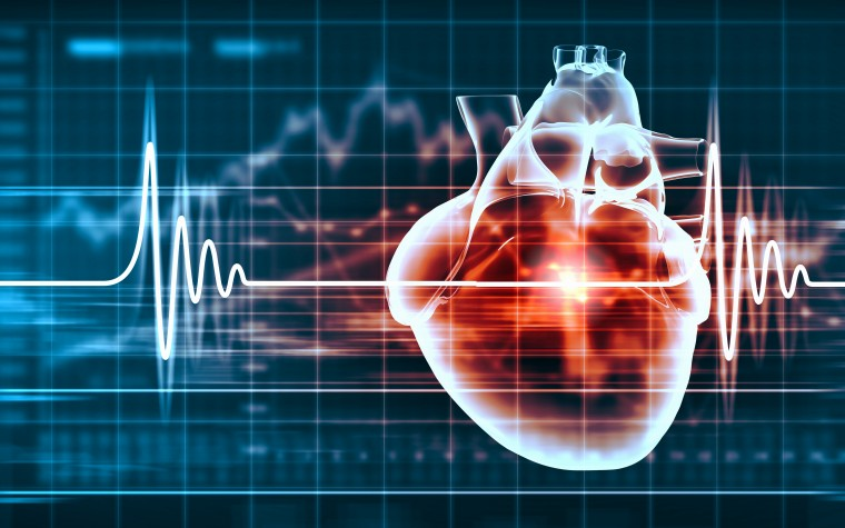 The risk of coronary heart disease in Hodgkin Lymphoma survivors is tied to dose of radiation therapy.