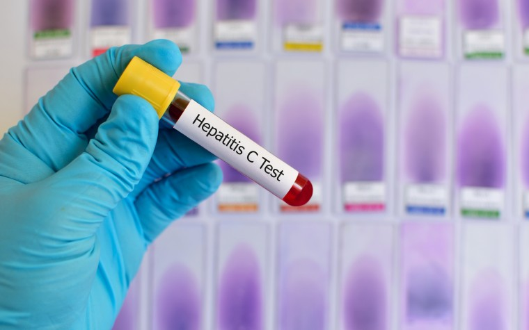 Head, neck cancers linked to hepatitis C