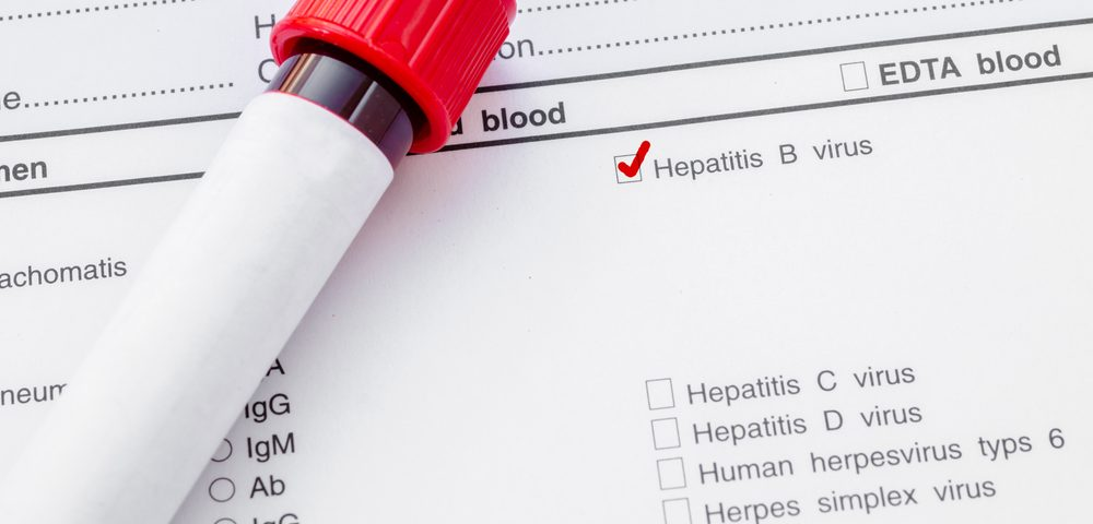 Hepatitis B- and C-Positive Patients Seem to Carry Higher Risks for Non-Hodgkin's Lymphoma, According to Study