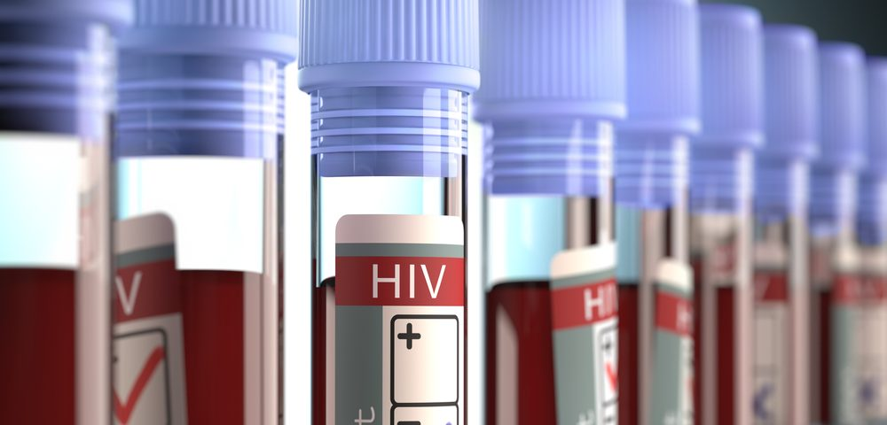 Who Gets Chemotherapy for HIV-associated Lymphoma? Depends on Socioeconomic Factors, Study Says