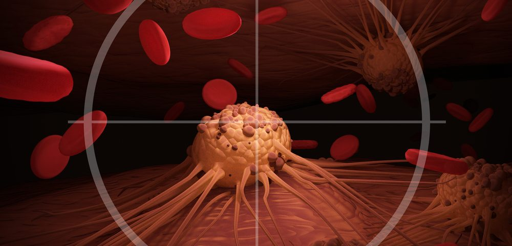 UNC Lineberger Cancer Center Launches Lymphoma Trials with CAR T-cells