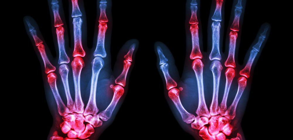 Lymphoma Risk in Rheumatoid Arthritis Not Linked to TNF Blocking Drugs