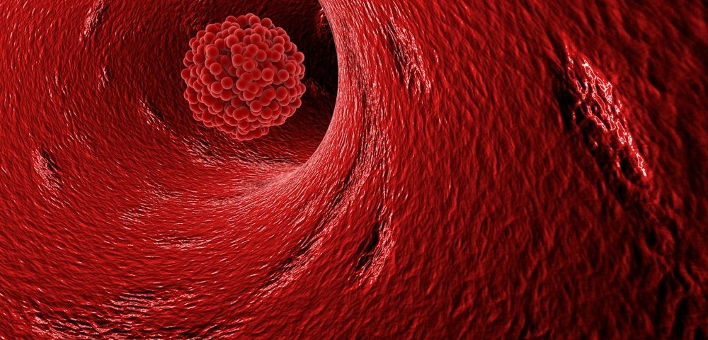 Blood Clots, Common Complication for Cancer Patients, May Be Result of Chemotherapy, Study Reports