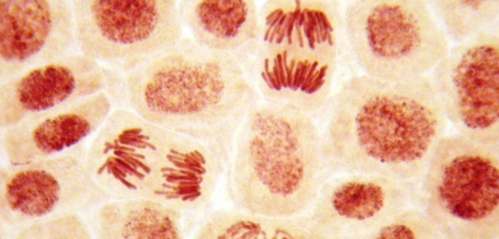 Study Unravels How Epstein-Barr Virus Leads to Hodgkin's Lymphoma