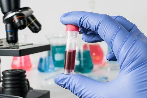 FDA Approves New Diagnostic Tool for Leukemias and Lymphomas