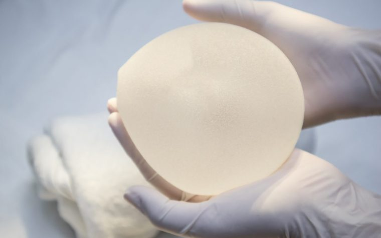 breast implants, risk of ALCL